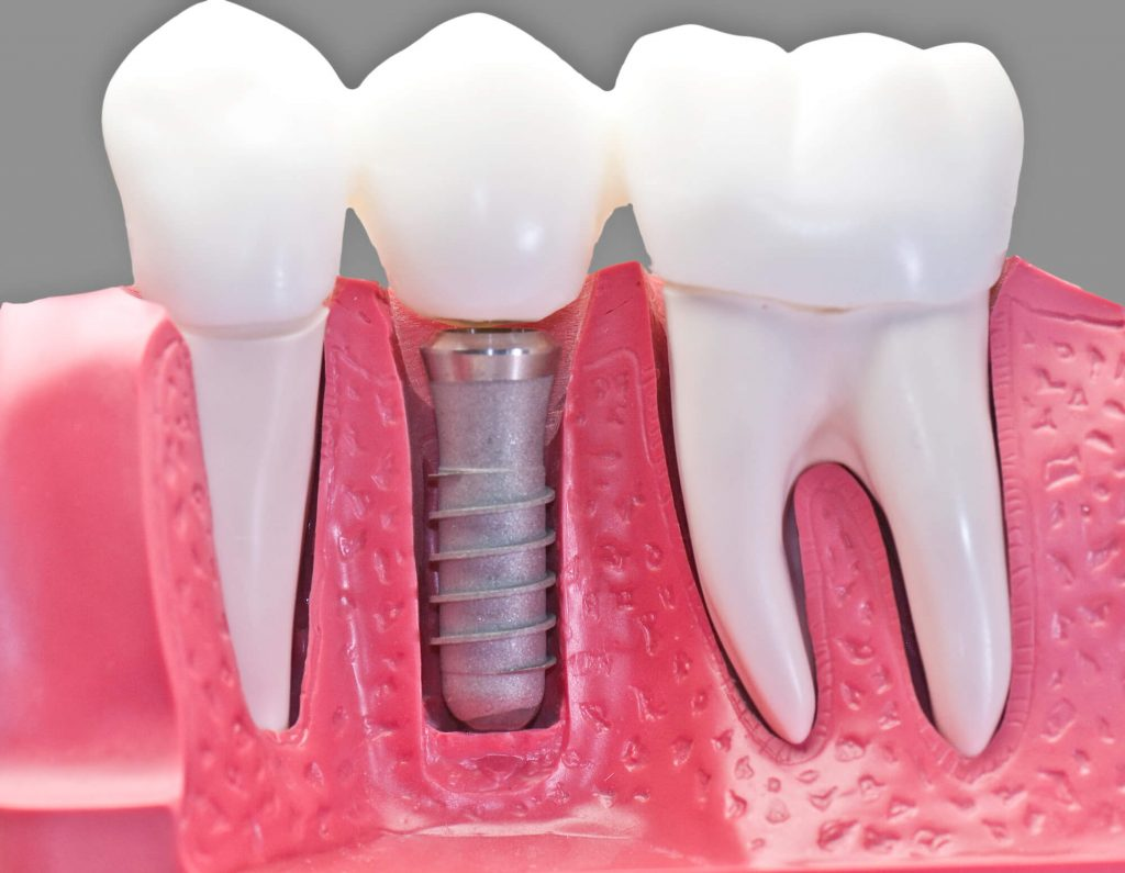 who offers the best dental implants lake worth?