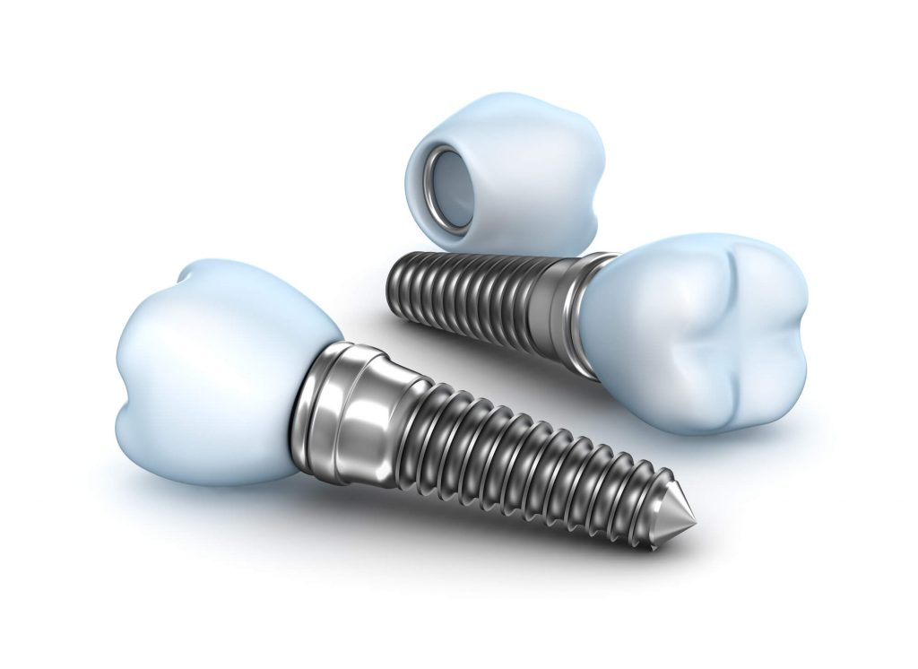 where are the best dental implants west palm beach?