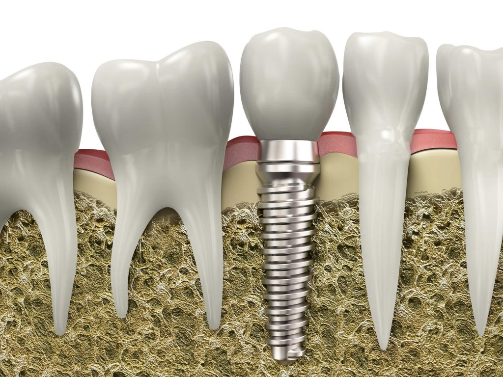 where is the best dental implants west palm beach?