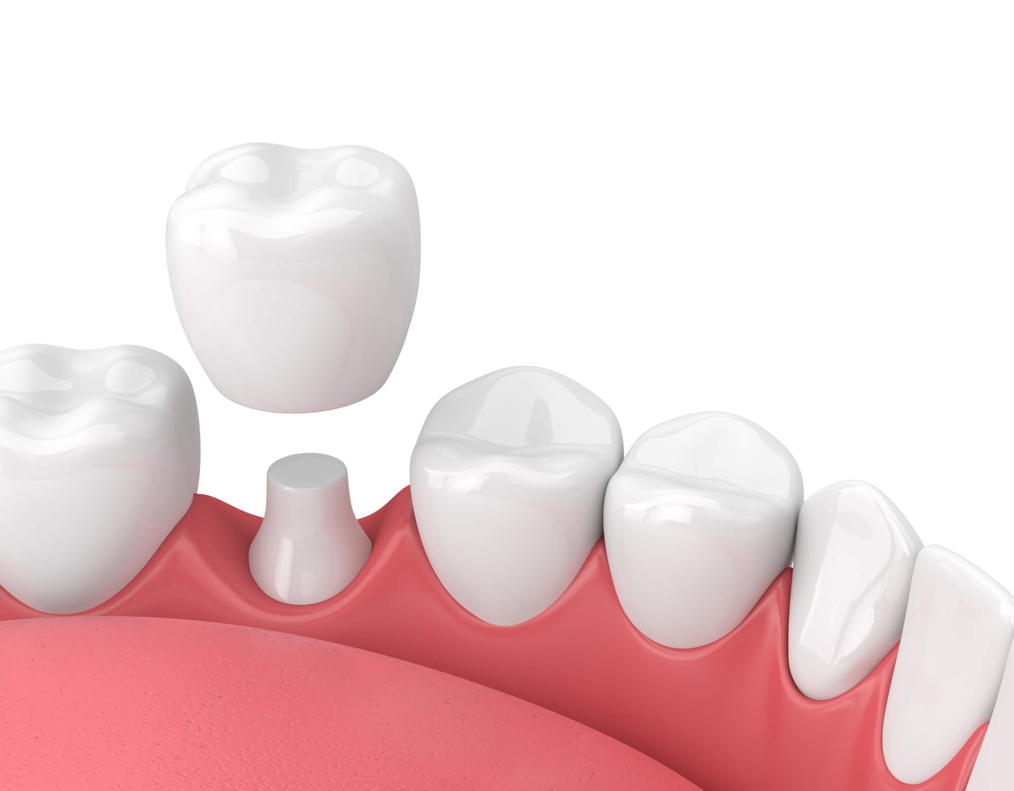 Where can I get Dental Crowns Lake Worth?