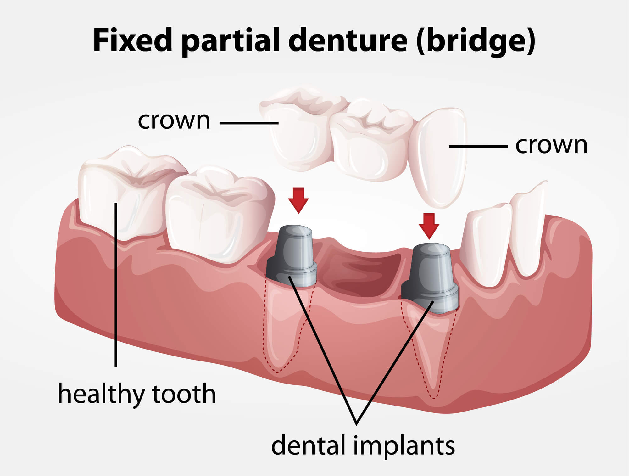 Where can I get Dental Implants Lake Worth?