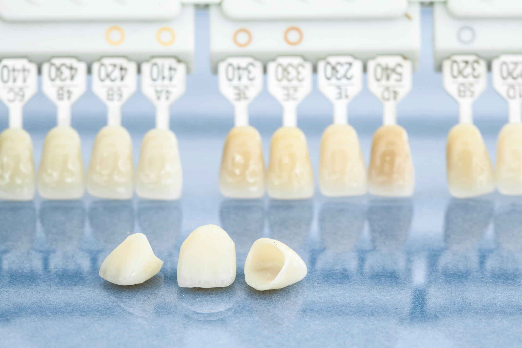 Dental Crowns Lake Worth